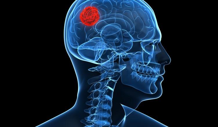 tumor-cerebral-o-que-e