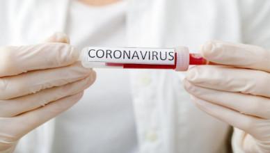coronavirus-4-1024x683_81105000