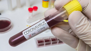koronavirus-2