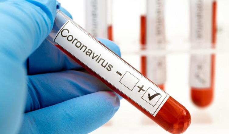 coronavirus-testing-everlywell