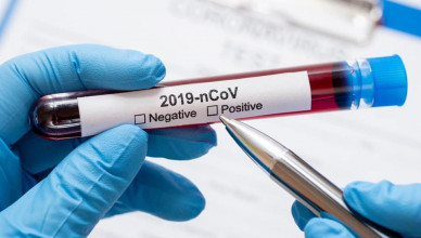 2020_03_27_koronavirus